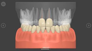 iD Lecture, материалы, анатомии зуба