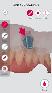 3Shape, Communicate, коммуникация, стоматологов, зубных техников
