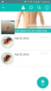 DermEngine - платформа для дерматологов