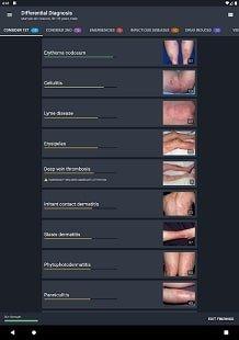VisualDx - справочник по дерматовенерологии